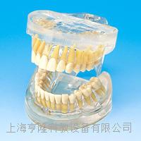 透明成人牙模型 KAH/B10010