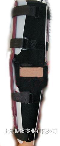 固定支具|固定支架|医用外固定支具|上肢骨折固定夹板 CBB/CBB/XZ-101