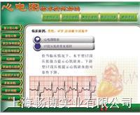新版心电图教学软件心电图临床实例解读 KAR/XDR