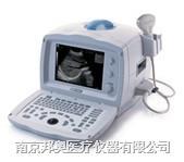 全數字便攜式超聲診斷系統 DP-1100Plus