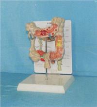 人体解剖模型|结肠常见病模型 GD-0328A7