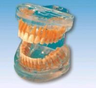 透明成人牙模型 SX-608