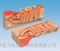 牙分解组织模型 SX-612