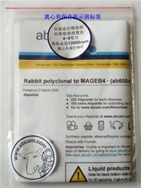 Estrogen Receptor alpha peptide ab5847