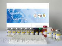 巨细胞集落刺激因子(GM-CSF)ELISA试剂盒