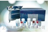 小鼠血管紧张素转化酶(ACE)检测试剂盒 96T/48T盒