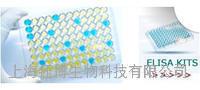人桥粒联结蛋白(AHNAK)ELISA试剂盒