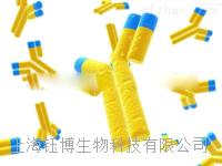 Anti-Phospho-BRCA1 (Ser1189)抗体